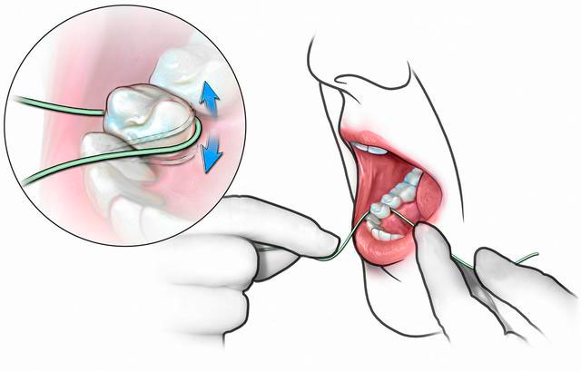 методика чистки зубов флоссом