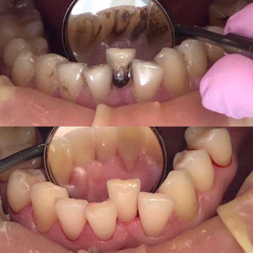 Профессиональная гигиеническая чистка зубов
