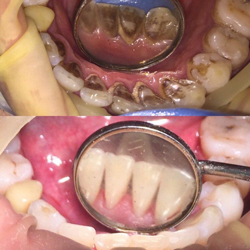 Проведена профессиональная гигиена полости рта с помощью ультразвука, Airflow